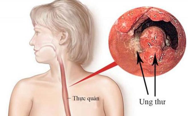 Trào ngược dạ dày biến chứng
